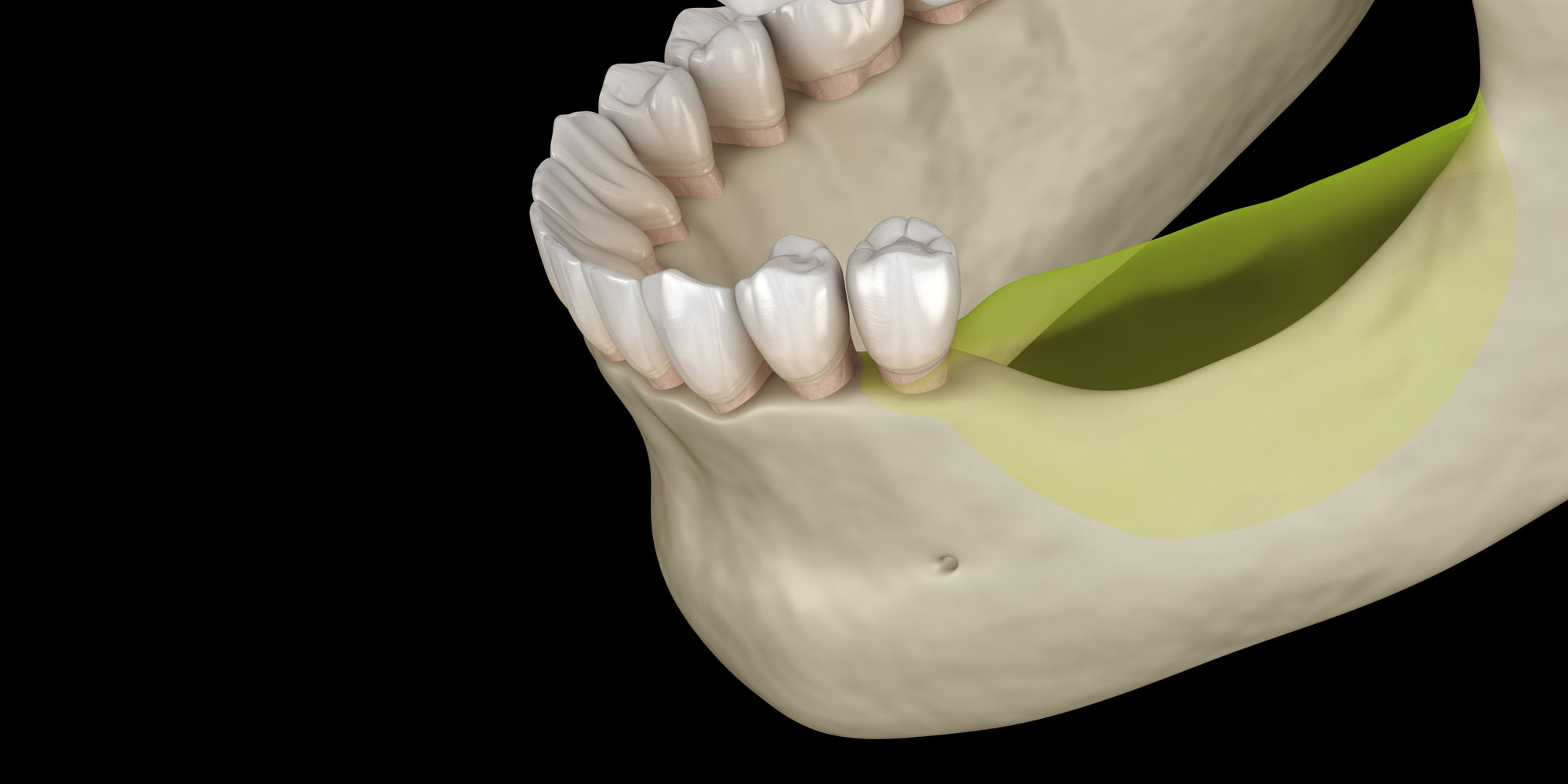 jaw bone loss